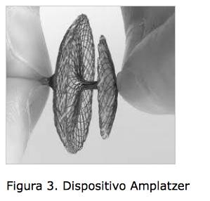 Chiusura percutanea del forame ovale pervio (pfo)